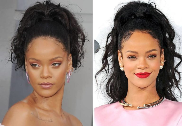 Rihanna's Hairline