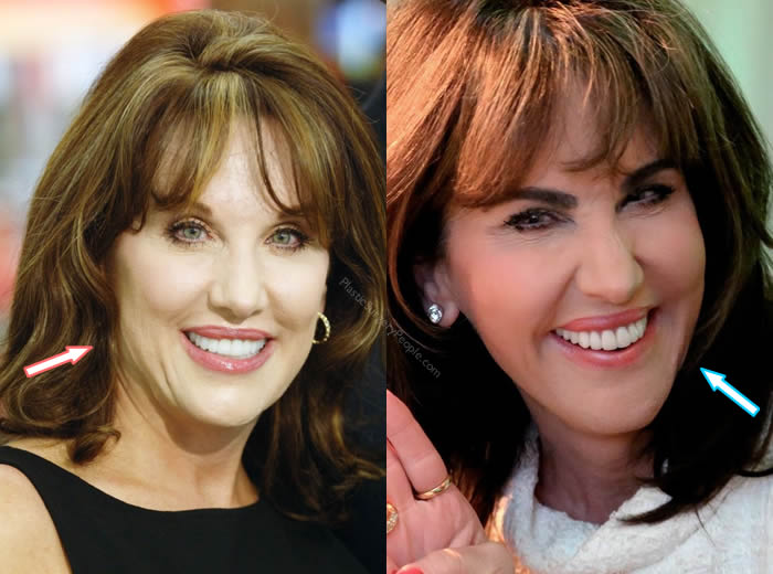 Robin McGraw's Plastic Surgery