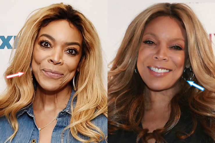 Wendy Williams Before And After Plastic Surgeries Plasticsurgerypro Info