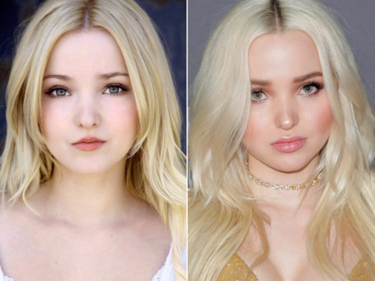 Dove Cameron's before and after photos
